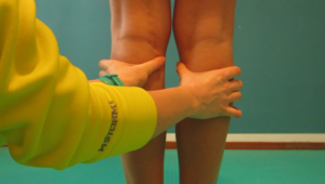 valutazione posturale delle ginocchia